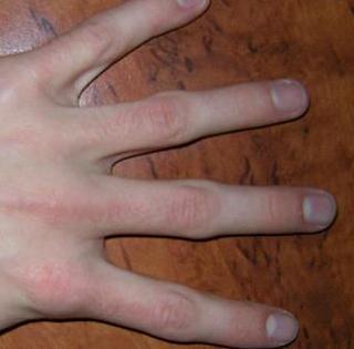 Finger knubbel Fingerschmerzen, Ursachen,
